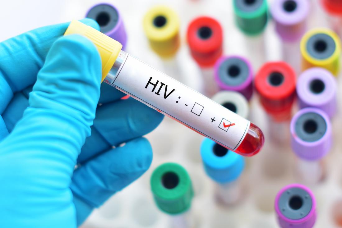 Agama & Budaya HIV
